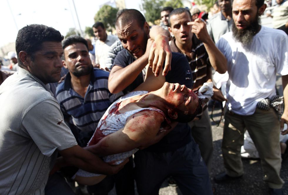 Un partidario del gobierno de Mursi herido por disparos del Ejército en El Cairo.